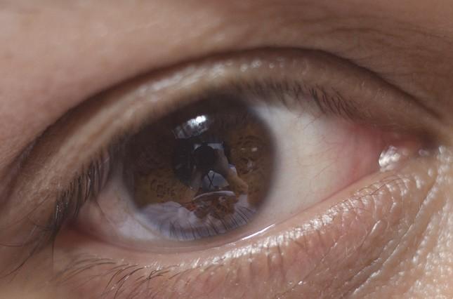 すぐ医師に相談しなければ失明に至ることも・・・(画像はイメージ)