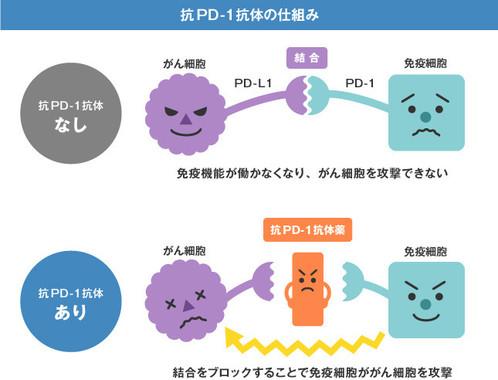 注目されている免疫療法。新たな腎がん治療となるか