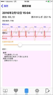 測定結果の画面。脈の揺らぎは波形とともに表示される