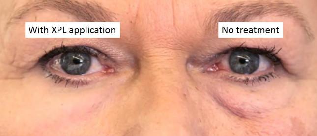 左目の下にはたるみが見えるが、「第二の皮膚」を付けた右目の下は見えない(Photo: Olivo Labs)
