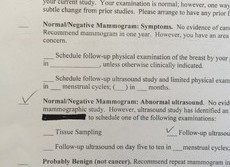 【女の相談室】米国乳がん検診体験記(第2回) マンモグラフィーと超音波の再検査