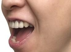 口内炎対策に「はちみつ」はNG 「飲酒でアルコール殺菌」もできません