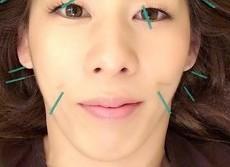 吉田沙保里の女子力アップが加速 「美容鍼灸」でハリまみれ顔を公開