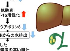 メタボだと胆石が増えやすい謎 マウス研究で「肝臓の酸素不足」だった