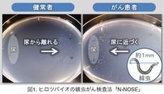 体長1ミリの線虫が尿1滴で診断...早期発見のがん検査、実用化へ