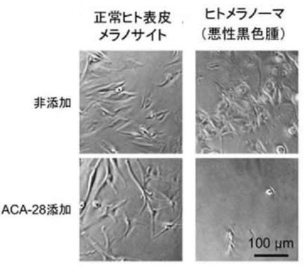 正常なヒト表皮のメラノサイト(左)とメラノーマ細胞。いずれも下が「ACA―28」を添加した状態。メラノーマ細胞の画像では細胞死などが引き起こされたことが分かる