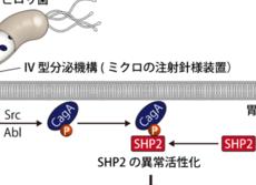 日本のピロリ菌は最悪と判明  胃がんの発症が欧米型より100倍危険