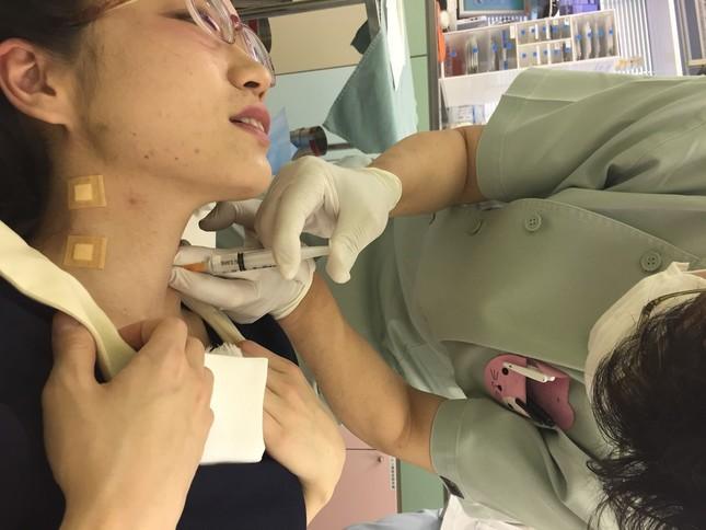 体中に40か所以上の注射を打つという塚本さんの治療の様子 (写真クレジット:塚本明里)
