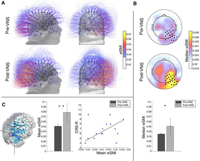 VNS後に男性の脳は覚醒している(論文