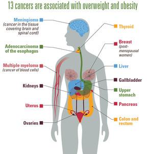 肥満が発症に関係する13種類のがん(米疾病対策センターの「Vital Signs」より)