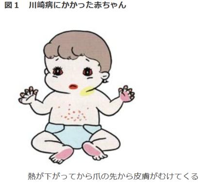 川崎病にかかった赤ちゃんの特徴(国立循環器病研究センターのウェブサイトより)