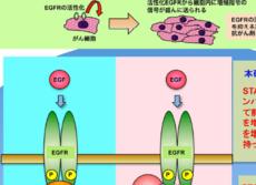 転移が怖い前立腺がん細胞の増殖を阻止 北海道大がスイッチ役のタンパク質発見