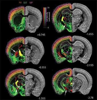メスの脳(左)はオス(右)より小さいがニューロンの数は多い(「CSHL」のプレスリリースより)
