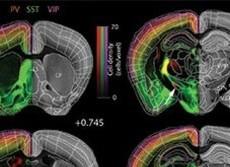 最新テクが発見! 女脳は男脳よりスゴイ 大きさでは男脳だが脳神経の数は女が上!
