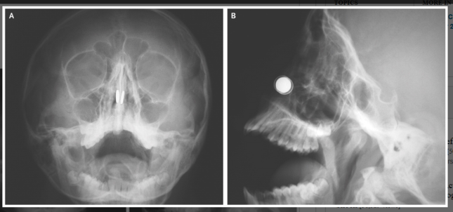鼻の穴の両側でボタン型磁石(白色の円形)がくっ付いたレントゲン写真。Aは正面、Bは側面(「The New England Journal of Medicine」の論文より)