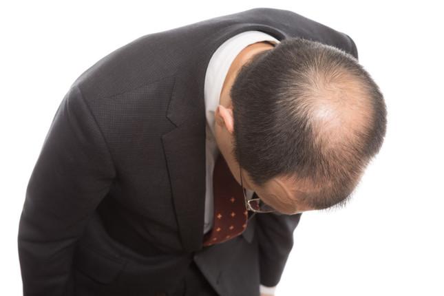 理研の薄毛再生技術は、患者の救いになるか