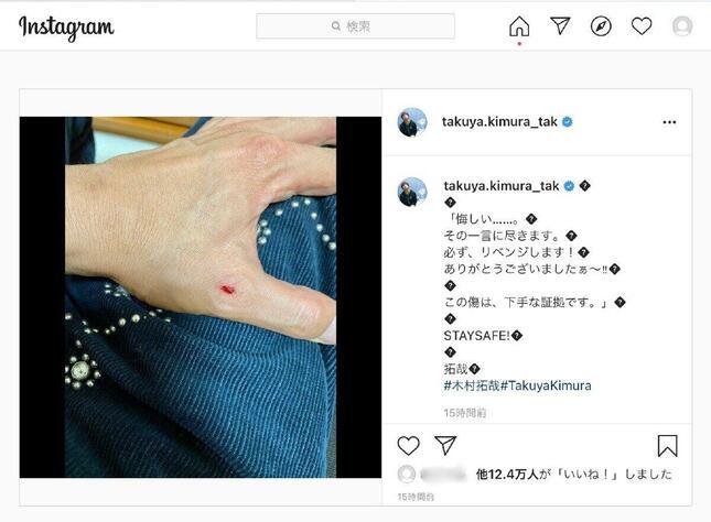 木村さんが投稿した「左手の傷」の写真(木村拓哉さんのインスタグラムより)