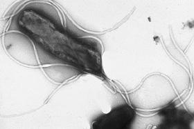 「ピロリ菌」とはどんな菌なのか