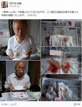 連日の「鼻血写真」を投稿(井戸川氏のFacbookより)