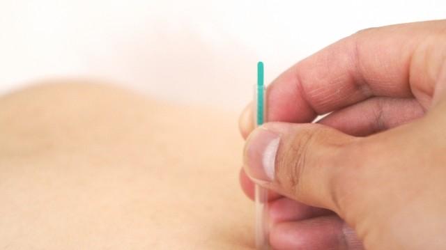 頑固な便秘に鍼(はり)治療が効く 西洋医学が中国の病院と協力し立証