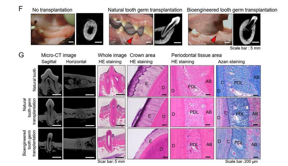 ビーグル犬から採取した幹細胞で 天然歯と全く変わらない歯を再生