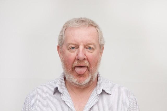 ヴァル・キルマー激太りから激やせの原因 舌がんにかかり治療中だった