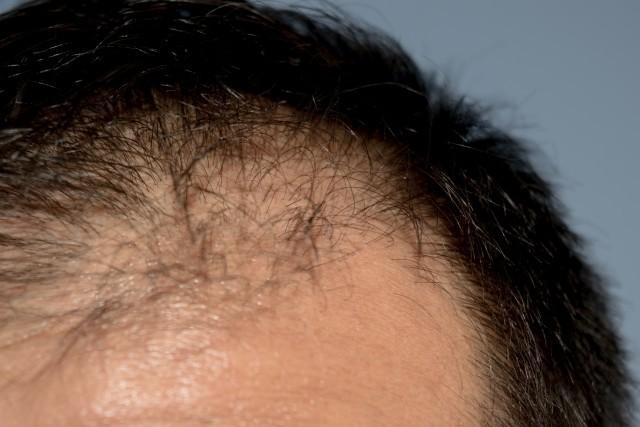 豊田議員「この、ハゲェーー!」はヘイト 薄毛に悩む人々「報道もう止めて!」