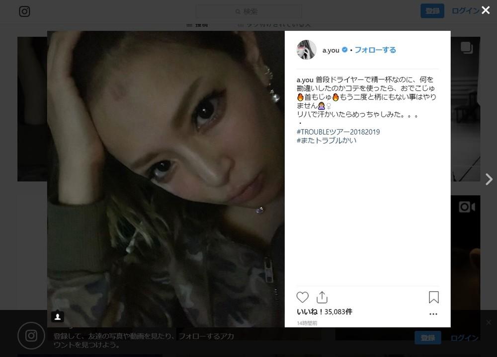 浜崎あゆみ、今度は「やけど写真」 「汗かいたらめっちゃしみた」