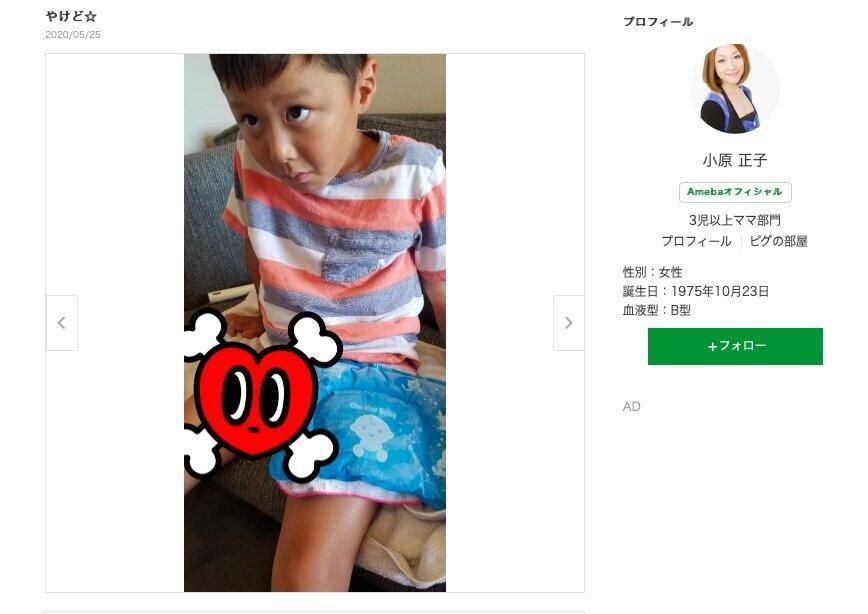 小原正子、息子やけどで反省 熱々うどんを「出したお母さんが悪かった」