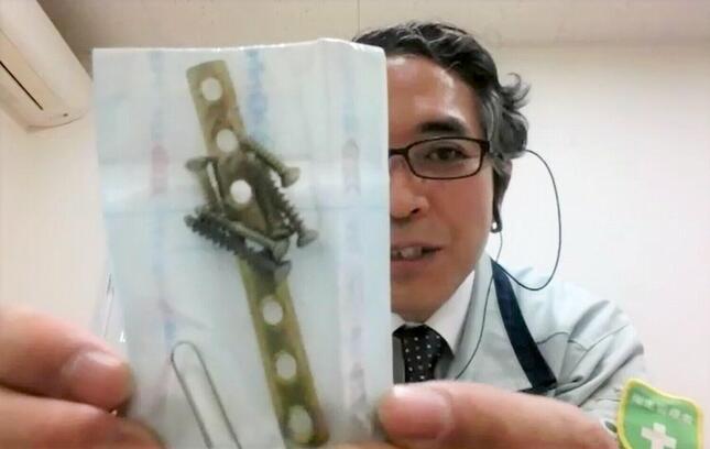 チタン合金のボーンプレートとねじ。日東精工の上野美光さんは足の骨折で2度の手術を受けた