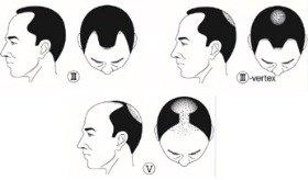 薄毛には、生え際からM字型に後退していくケース、頭頂部からO型に脱毛が始まるケースがあるが、進行すると前頭部、頭頂部ともに薄毛が広がる。