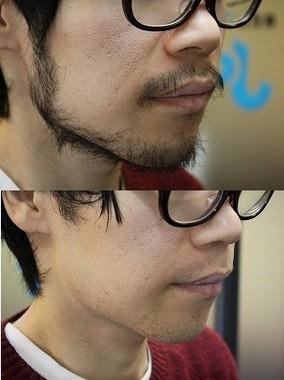剃る前と後の比較
