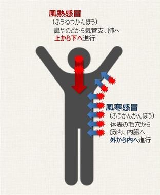 中国伝統医学からみた風邪は、「風熱感冒」と「風寒感冒」の2種類に大別される