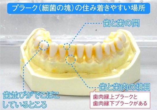 歯ブラシだけでプラークを落とすのは困難