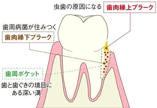 歯周ポケットのプラークは除去が困難(編集部作成)
