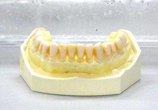 生キャラメルを付けた歯の模型をケースに入れて30秒間振った。汚れが残っている