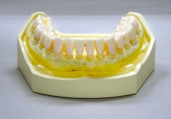 「ジェットウォッシャー ドルツ」で洗浄した歯の模型