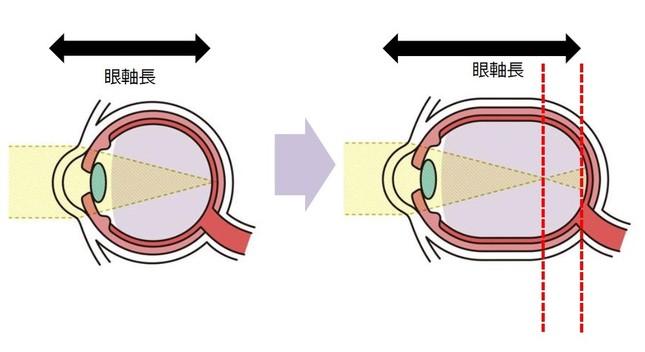 近視のメカニズムのひとつは、「眼軸長」が伸びること