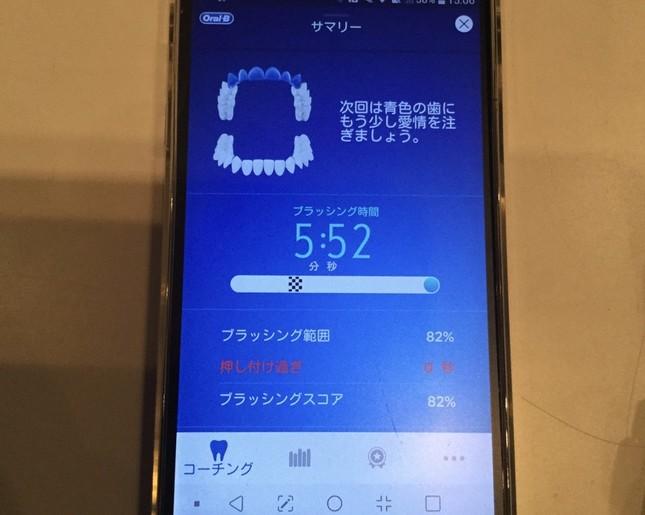 歯磨き後はアプリにブラッシング時間が表示される