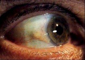 「瞼裂斑」はドライアイや充血の原因に