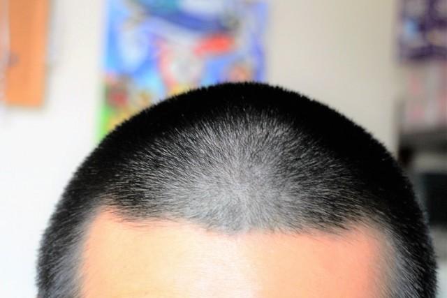 髪の長さや傷み具合でリンスやコンディショナーの必要性は変わる