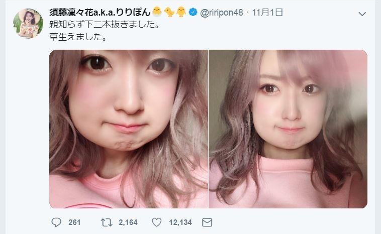 元NMB48・須藤凜々花「顔面激変」 「加工疑惑」飛び出すほど腫れあがる