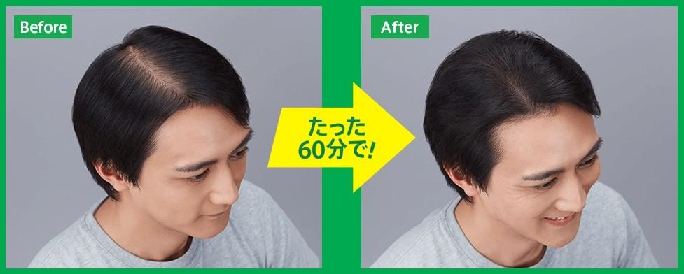 60分で増毛が実感できる「増毛60分5000円(税込)キャンペーン」