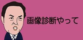 AⅠが中国の医師国家試験に合格 正規の医師にならず診察の補助に使用