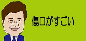 日馬富士問題に横綱審議委員会が厳しい見方 JNNが貴ノ岩の傷の写真入手